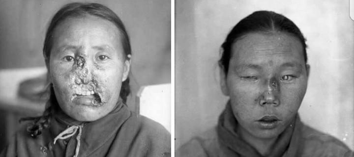 Тэмбүү өвчин монголд 1700-аад оны үед орж ирсэн